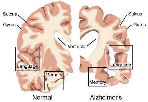 alzheimer disease, Human Body